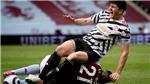 Bóng đá hôm nay 10/5: Maguire nguy cơ bỏ lỡ chung kết C2. Zidane nổi giận với trọng tài