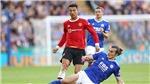 MU sau thất bại trước Leicester: Rắc rối mang tên Cristiano Ronaldo