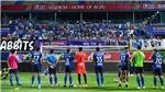 Cầu thủ Thái Lan đấu giá áo để làm từ thiện chống dịch covid-19