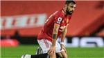 MU: Mình Bruno Fernandes không đủ để hạ Man City