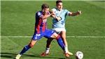 Soi kèo nhà cái Celta Vigo vs Cadiz và nhận định bóng đá Tây Ban Nha La Liga (02h00, 18/9)
