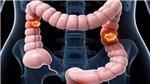 Cảnh báo nguy cơ mắc ung thư từ bệnh viêm đại tràng