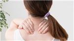Giảm đau cứng cổ, đau vai gáy do thoái hóa đốt sống cổ hiệu quả bằng sản phẩm tự nhiên