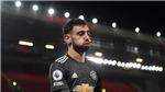 ĐIỂM NHẤN Liverpool 0-0 MU: Xu hướng ít bàn trận lớn. MU vẫn dẫn đầu, Liverpool đáng lo