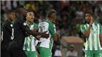 HI HỮU: Cầu thủ Colombia bị đuổi vì tranh đá phạt rồi đánh... đồng đội