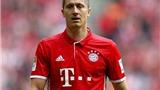 Lewandowski được ca ngợi là tiền đạo xuất sắc nhất thế giới