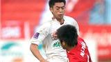 Lee Nguyễn cũng ngán 'đặc sản' bạo lực của V-League