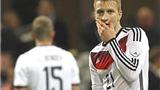 Tuyển Đức: Sinh nhật cay đắng của Marco Reus