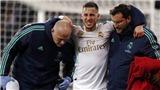 Bóng đá hôm nay 3/3: Real mất Hazard đến hết mùa. Lộ lý do De Gea sa sút ở MU