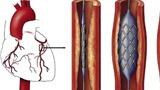 BV Hoàn Mỹ Cửu Long và BV Đa khoa Tỉnh Hậu Giang: Cứu sống người bệnh ngưng tim ngưng thở