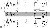 Phát hiện 'chìa khóa' trong bản nhạc của Mozart giúp xoa dịu người bệnh động kinh