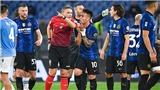 Inter thua trận đầu tiên: Dấu hỏi về bản lĩnh trong đại chiến