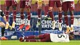 Sút phạt kiểu Ronaldinho: Làm thế nào để ngăn cản?