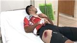 Chấn thương trong thi đấu xe đạp: 'Tử thần' rình rập