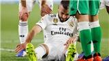 Benzema chấn thương, Real lại tìm kiếm 'Adebayor mới'