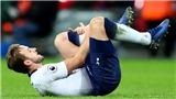Harry Kane nghỉ 2 tháng vì chấn thương, M.U và Chelsea mừng thầm