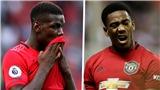 MU khủng hoảng chấn thương: Vắng 7 cầu thủ ở trận gặp Leicester