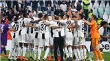 Juventus vô địch Serie A 8 mùa liên tiếp: Kỷ lục của lao động, quản trị và khát vọng