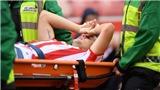 Cựu sao Ngoại hạng Anh gãy chân kinh hoàng trước mùa giải mới