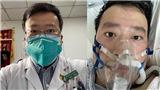 Vị bác sĩ cảnh báo về virus corona qua đời