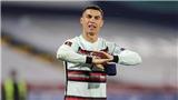Băng đội trưởng bị Ronaldo vứt đi được dùng làm từ thiện