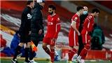 7 cầu thủ thảm họa trong đội hình Liverpool