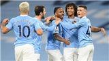 Link xem trực tiếp bóng đá. Marseille vs Man City. Xem trực tiếp cúp C1
