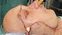 Cận cảnh: Ca ghép mặt cứu mạng sống đầu tiên trên thế giới