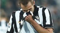 CHÍNH THỨC: Juventus mất Chiellini trước Chung kết Champions League