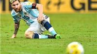 Argentina trong gương mặt 'lem luốc'