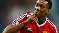 HI HỮU: Man United sẽ mất rất nhiều tiền nếu  Martial 'xé lưới' St Etienne