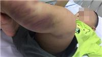 Phẫn nộ kẻ bạo hành bé trai hơn 1 tuổi đến tổn thương não ở Hà Nội