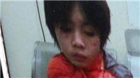 Chủ tịch Hà Nội Nguyễn Đức Chung chỉ đạo xử nghiêm vụ bố đẻ, mẹ kế bạo hành con