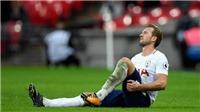 Vì sao Tottenham không ngán M.U dù vắng Harry Kane?