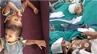 36 tiếng và 40 bác sĩ tham gia phẫu thuật tách cặp song sinh dính đầu