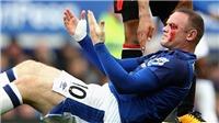 SỐC trước khuôn mặt đầm đìa máu của Rooney vì bị đánh cùi chỏ