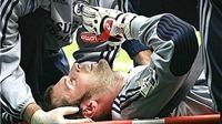 Những chấn thương thập tử nhất sinh trong bóng đá: Rùng mình nhớ cú va chạm của Petr Cech