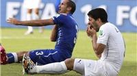 FIFA phải treo giò Suarez đến hết World Cup, thậm chí 2 năm