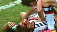 Những chấn thương ghê rợn nhất ở vòng bảng World Cup 2014