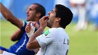 Quan điểm Martin Samuel: Suarez xin lỗi, thôi cắn người chỉ vì... Barcelona