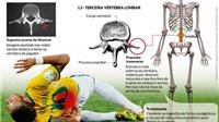 ĐỒ HỌA: Neymar đã dính chấn thương như thế nào?