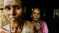 Cơn ác mộng giết phù thủy ở các làng quê Ấn Độ