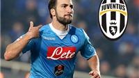 Higuain CHÍNH THỨC gia nhập Juventus với giá 90 triệu euro