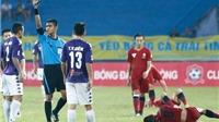 Cuộc đua vô địch V-League: Mong ít bị tình nghĩa chi phối