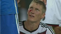 Aguero từng đấm Schweinsteiger chảy bê bết máu