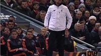 Juergen Klopp: 'Thật hoàn hảo để bắt đầu năm thứ 2 tại Liverpool với Man United'
