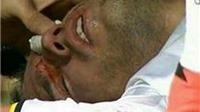 SỐC: Van Persie bị đối thủ làm rách mắt, may mắn không bị mù