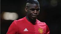 CĐV Man United 'mừng thầm' khi Paul Pogba chấn thương