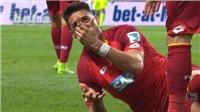 Phát hoảng với ngón tay bị gãy của sao Bundesliga