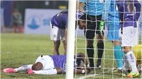 'Hà Nội FC cần xem lại khi nhiều cầu thủ chấn thương'